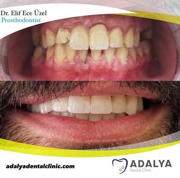 Dentistry in Turkey Antalya