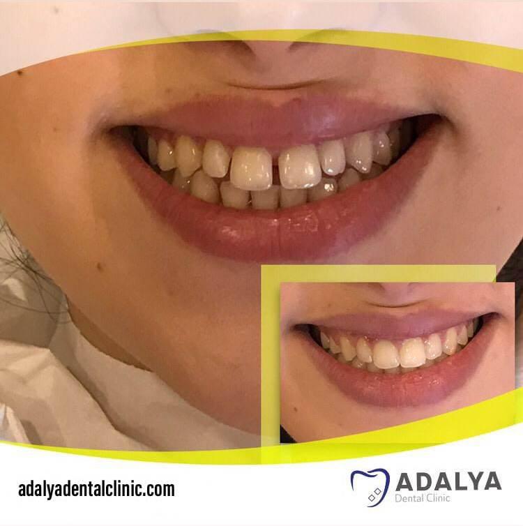 aesthetic dentistry turkey antalya