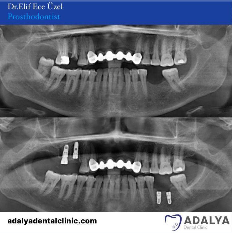 dental clinic antalya turkey