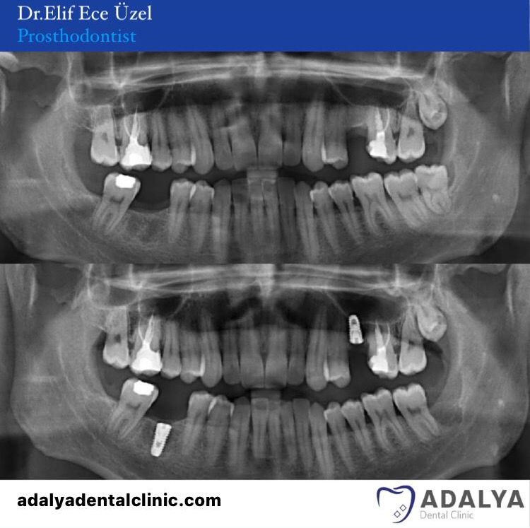 dental clinic turkey antalya