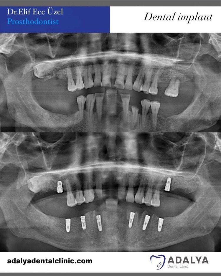 dentistry turkey prices dental centre