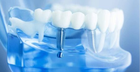 who is suitable for dental implants