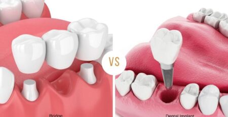 Which is better? dental implant or bridge