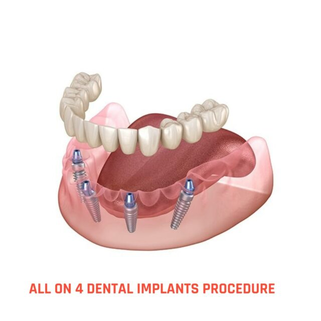all on 4/four dental implants procedure turkey price