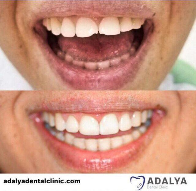 composite bonding teeth veneers cost in antalya turkey