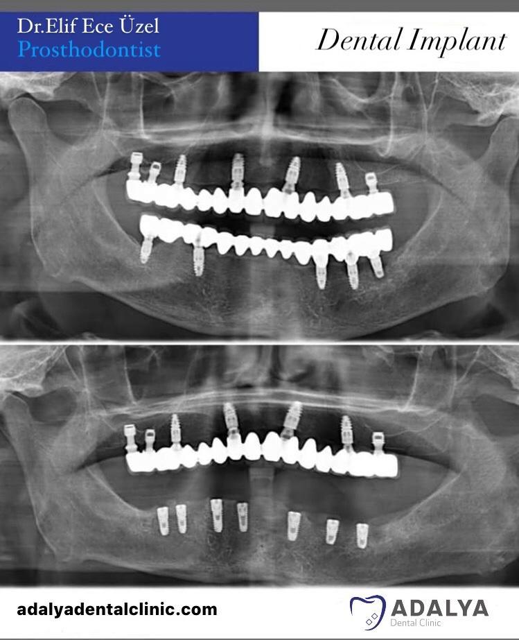dental centre antalya