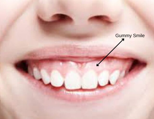 gum contouring turkey cost gummy smile correction fix treatment