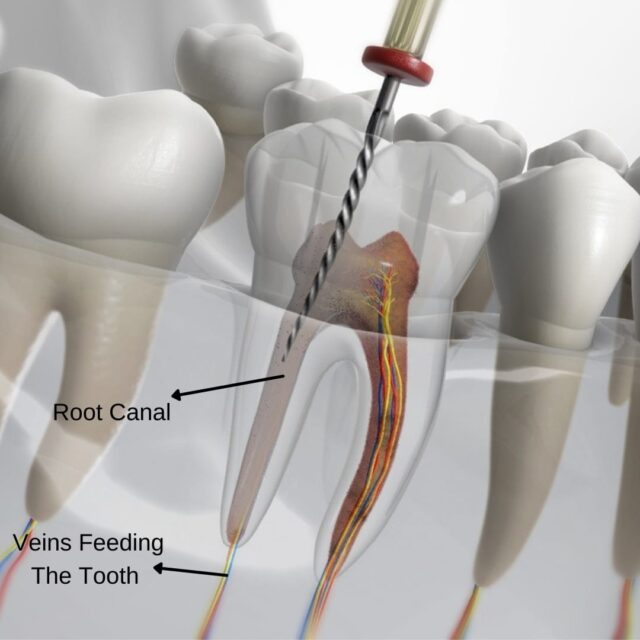 root canal treatment in turkey cost procedure