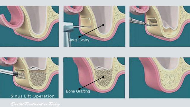 sinus lifting surgery turkey cost procedure