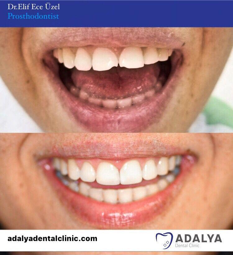 dental centre turkey antalya treatments