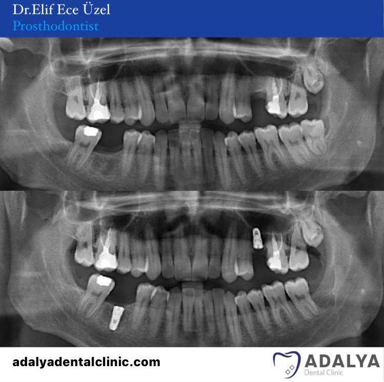 dental centre turkey treatments