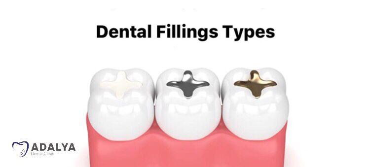 Dental fillings types
