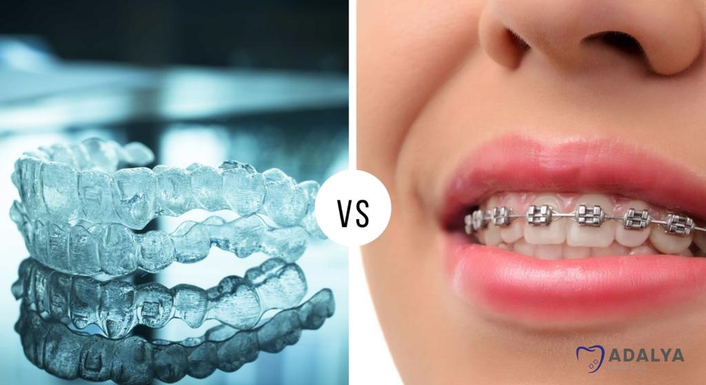 invisalign vs braces which is better
