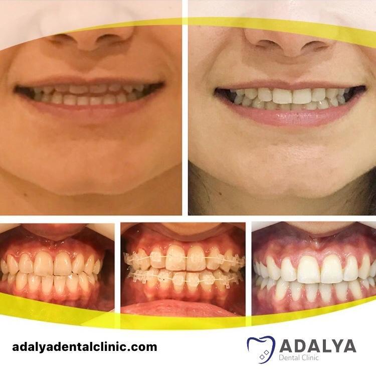 braces in turkey antalya cost dental