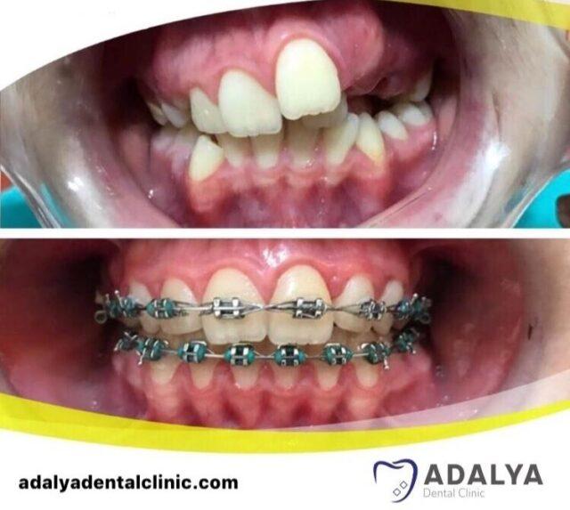braces in turkey cost antalya dental