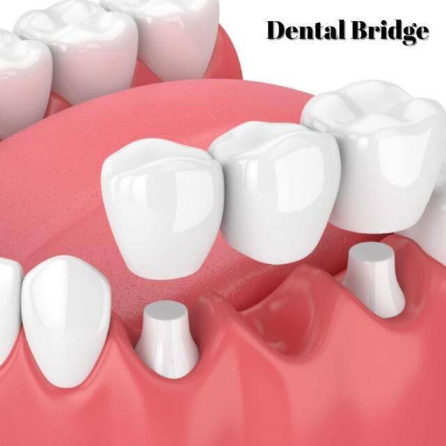 dental bridge turkey cost