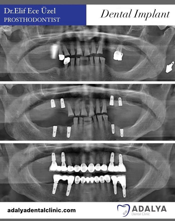 dentistry in turkey antalya dosemealti