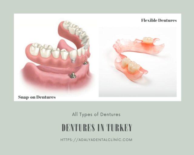 dentures in turkey cost