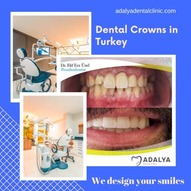 dental crowns turkey cost antalya full mouth